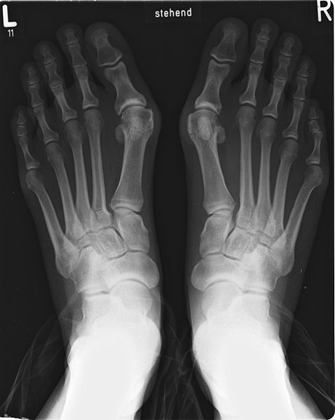 Hallux Valgus vor der Operation