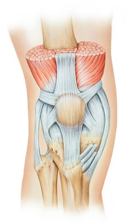 Bänderriss im Knie