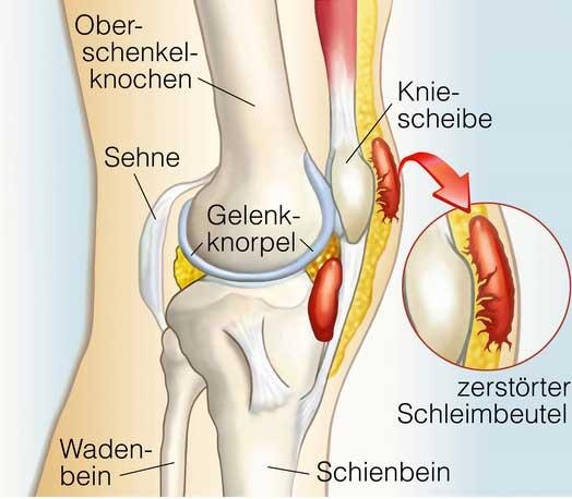 Knochen und gelenkschmerzen ursachen
