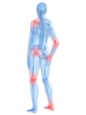 Wie dass bei dir die Osteochondrose zu bestimmen