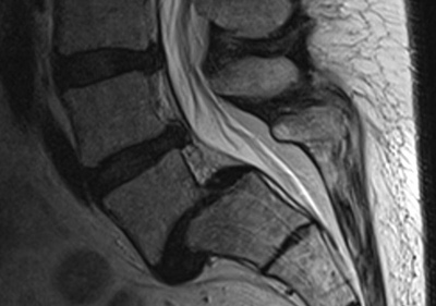 grade 1 retrolisthesis l5 on s1 Retrolisthesis - wikipedia grade 1 retrolistheses of c3 on c4 and c4 on c5 a retrolisthesis is a posterior displacement of one vertebral body with respect to the.