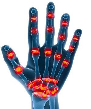 Der Komplex der Öbungen bei den Schmerzen meschposwonkowoj die Brüche