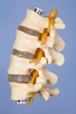 osteochondrotische veränderung