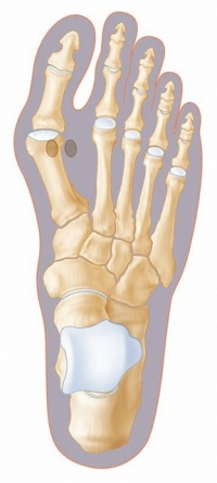 Methoden Op Hallux Valgus even suitably unbefitting