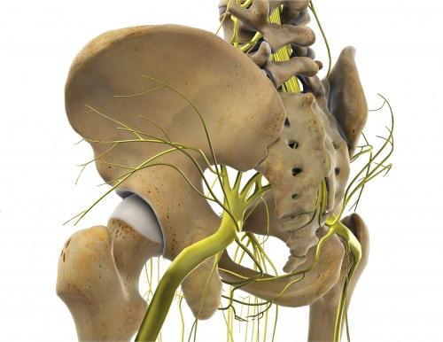 Diagnostikum für Hüftschmerzen an der Außenseite