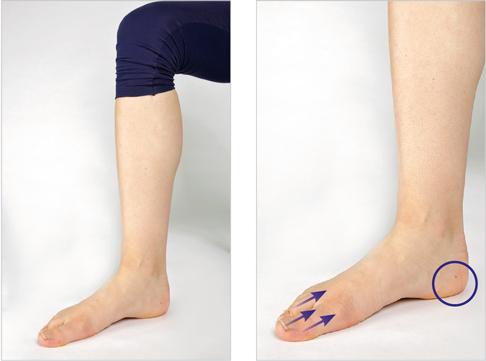 Sono und MRT decken Ursache der Schwellung am Knöchel auf