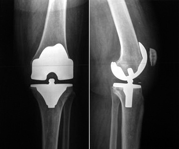 Vollprothese Knie Behinderungsgrad