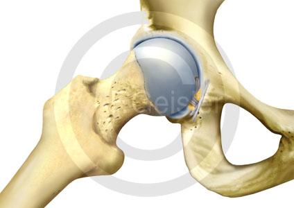 Medizinisch-Anatomische Bilder Hüftgelenk, Hüftarthrose, Hüfte und ...