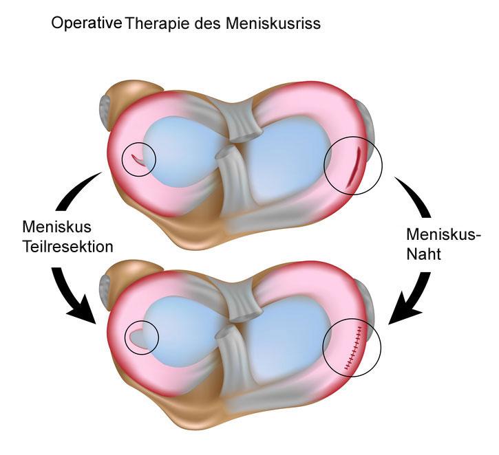 Arthrose im ballen gelenk. Hallux valgus – ein Frauenproblem | Apotheken Umschau