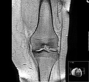Wasser im Knie – Ursache, Symptome, Diagnose und mehr!