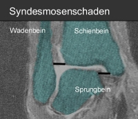 Syndesmoseband Operation