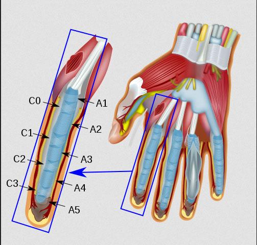 Schnellender Finger Eine Sehnengleitstörung Der Hand Wwwgelenk