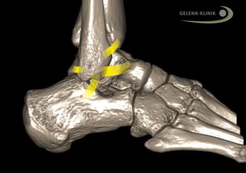 Arthrose im Fuß erkennen & behandeln – Verschleiß der Fußgelenke & Fußwurzel