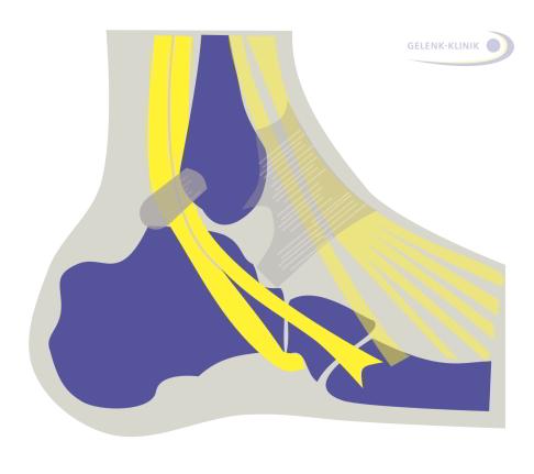 Schmerzen am Fußspann / Fußrücken