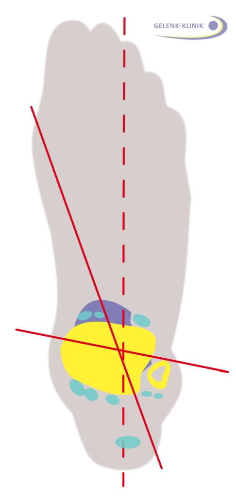 Sprunggelenkschmerzen: Harmlos, oder gibt es eine Verletzung im ...