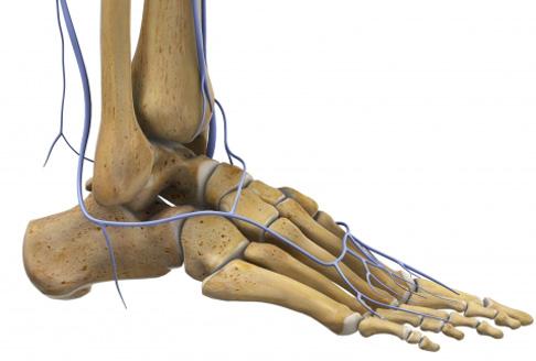 Knieprothese: Was bei Schmerzen hilft