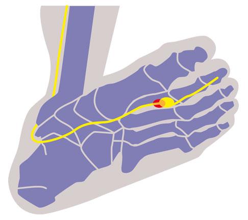 Dein Fuß schmerzt? Daran liegt's und so beugst du vor!