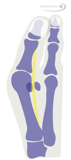 Вальгусная деформация в стопе возникает при супинации большого пальца в направлении меньших пальцев. Воспаления околосуставной сумки (бурсы) первого плюснефалангового сустава и его износ могут вызвать болезненный артроз. © Dr. Thomas Schneider