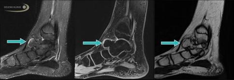Хрящевой экзостоз - это доброкачественное костно-хрящевое разрастание на поверхности кости, которое образуется из окостеневающей хрящевой ткани. Как правило данный процесс заканчивается после прекращения роста стопы пациента. Оперативное вмешательство необходимо лишь в том случае, если остеохондрома вызывает боль в стопе и поражает нервные окончания и суставы. © Dr.Thomas Schneider