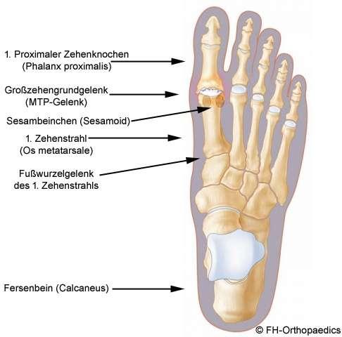 Arthrose in den Knöcheln, Füßen und Zehen