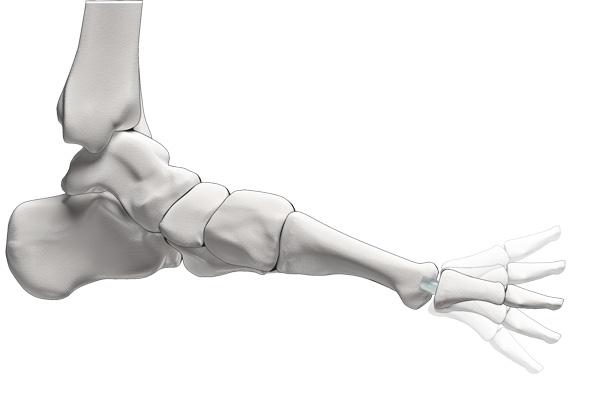 Schmerzhafte Arthrose: Wenn sich die Knorpel in den Gelenken abreiben