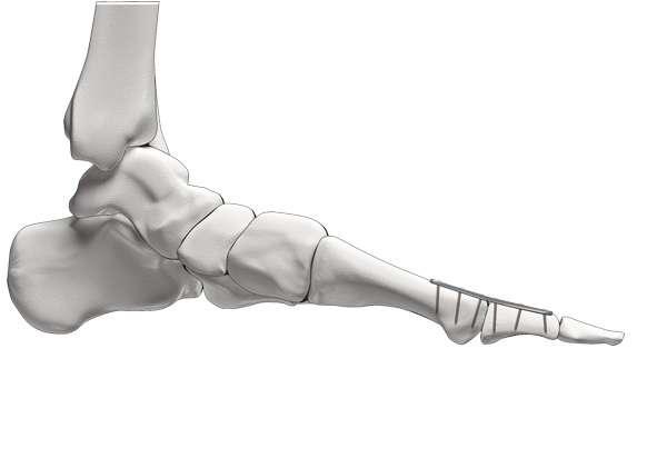 Chronische Polyarthritis / Rheumatoide Arthritis