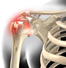 Sehnenriss Schulter Symptome