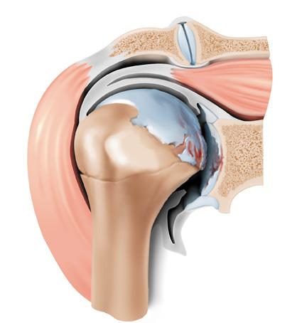 Ursachen von Beschwerden an Schultern, Armen und Händen