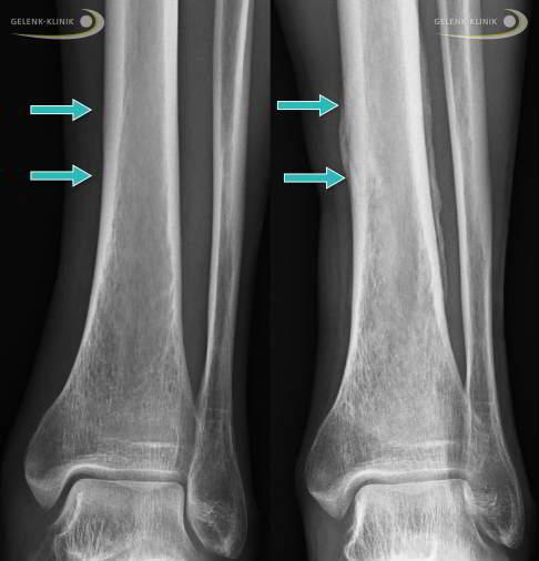 Beinverletzungen